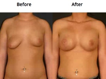 uneven breasts breast augmentation